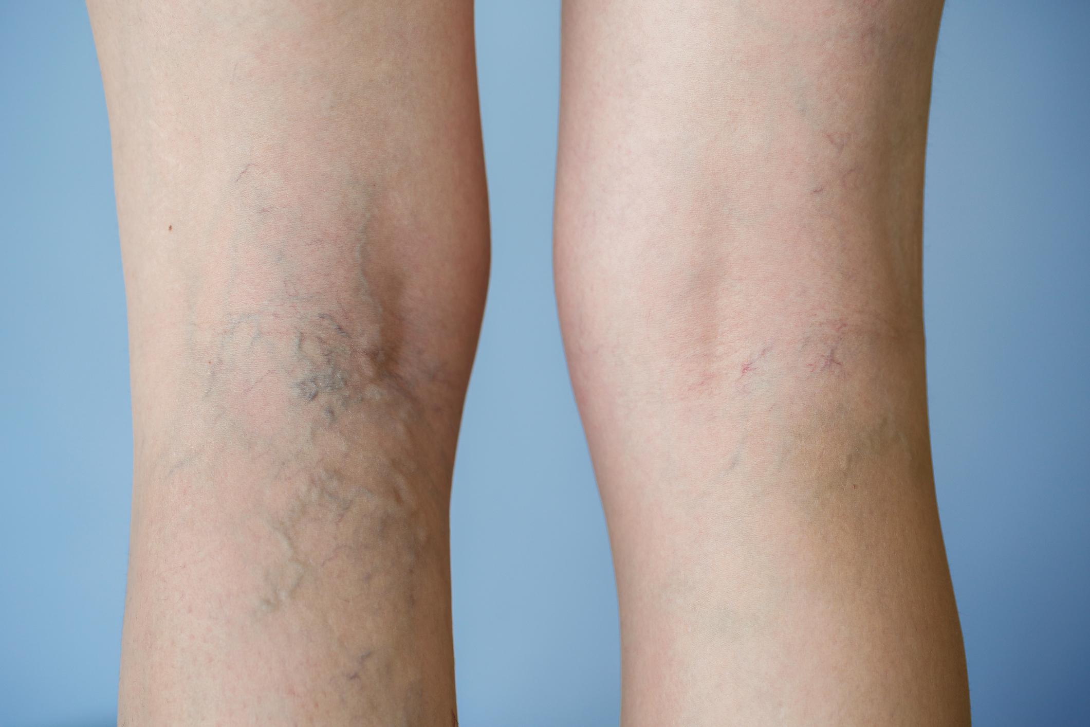 As varizes são veias dilatadas e deformadas, com coloração azulada, que aparecem com mais frequência nas pernas.