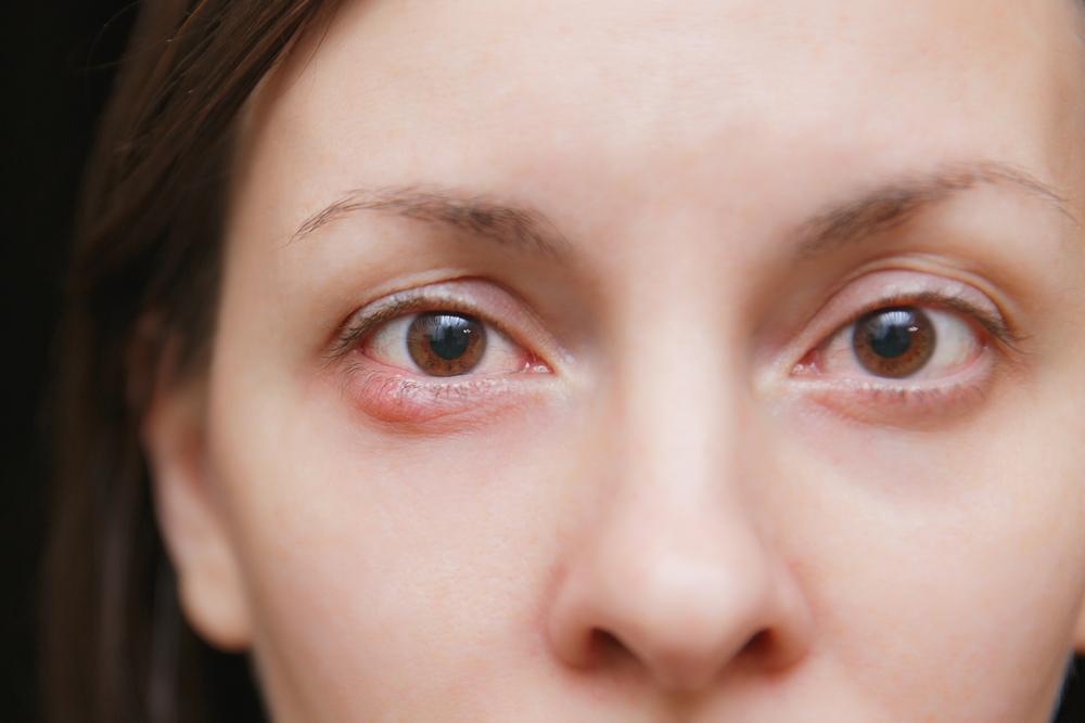 Quando surge uma bolinha vermelha na parte externa da pálpebra, muitas pessoas acreditam ser terçol e que logo desaparecerá sozinha alguns dias depois.