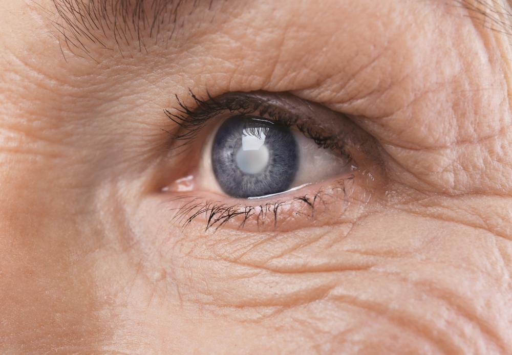 Mesmo em tempos de pandemia, é importante as pessoas não deixarem de lado o check-up regular para prevenir e tratar doenças oftalmológicas, como o glaucoma.